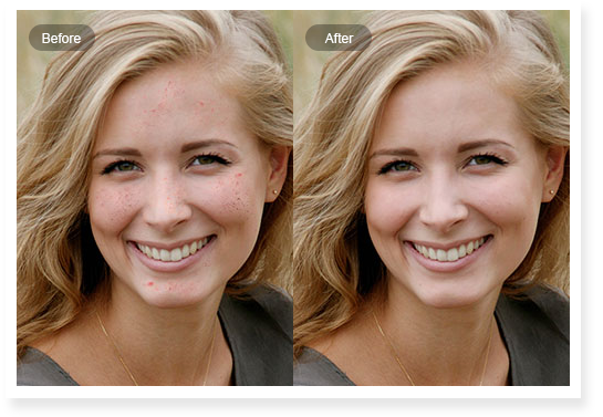 Removing facial blemishes your
