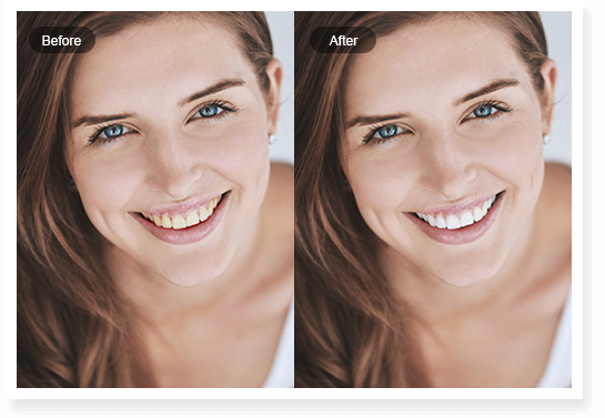 Teeth Whitening Fotor Whiten Your Teeth In Photos Online For